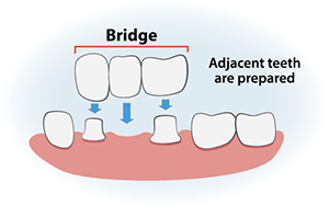 dental bridges info graphic