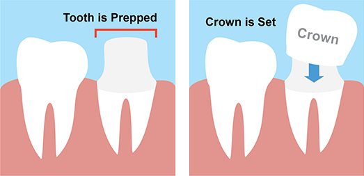 dental crown cartoon graphic