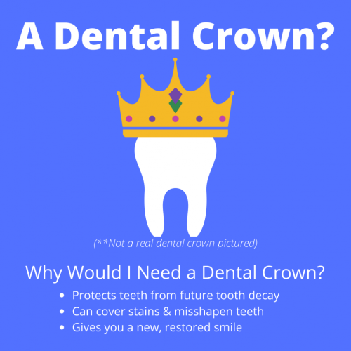 A Dental Crown blog image
